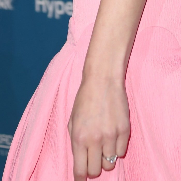 Gemma Arterton was born with six fingers but underwent hand surgery to remove the extra finger