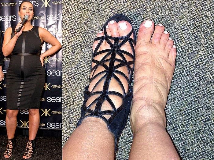 Kim Kardashian pinched swollen feet