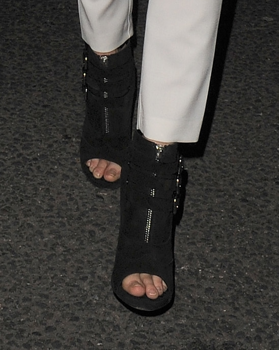 Cara Delevingne's jacked up toes