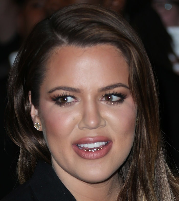 Khloe Kardashian flashed her metallic bottom teeth as she smiled at the photographers