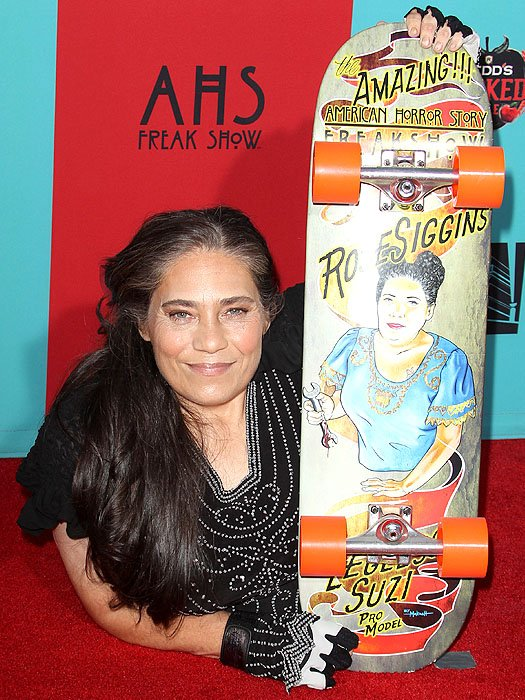 Rose Siggins, the woman who had to have both legs amputated as a child due to a genetic disorder known as sacral agenesis