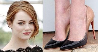 emma stone legs