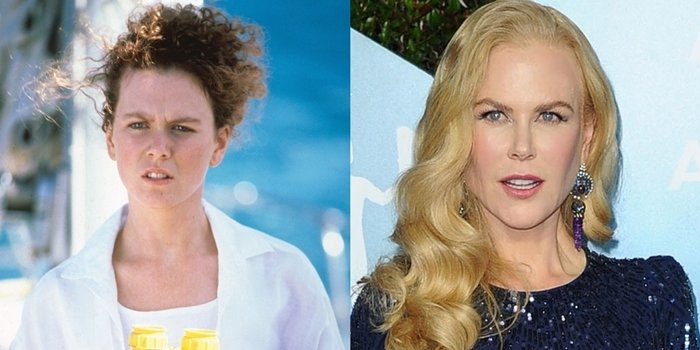 Nicole Kidman before and after rumored plastic surgery