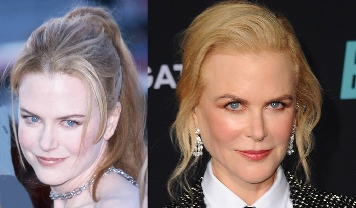 Nicole Kidman's face at the premiere for her new film The Others in 2001 and at the premiere of Bombshell in 2019