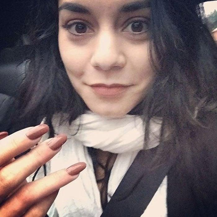 Vanessa Hudgens Injured Valentino IG 1