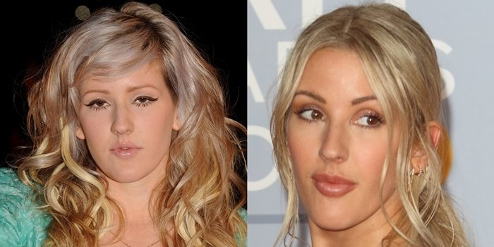 Ellie Goulding's face in February 2010 (L) and in February 2020 (R)