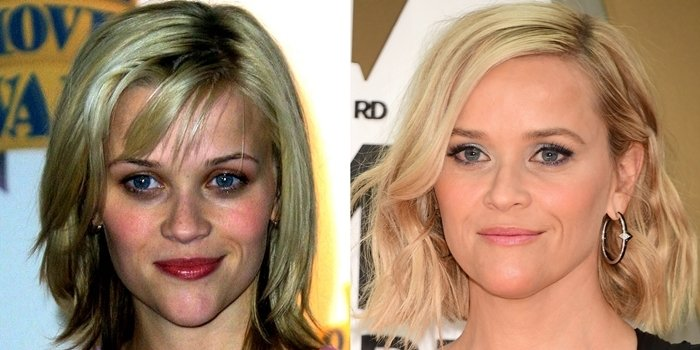 Reese Witherspoon before and after chin reduction plastic surgery
