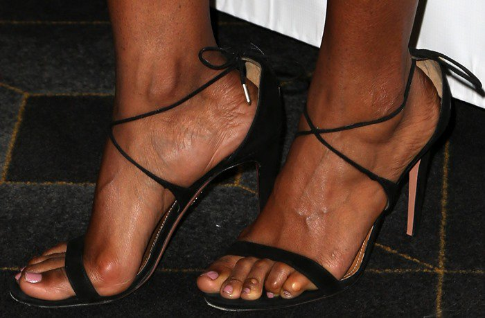 Kelly Rowland showing off her corny feet and foot bunions