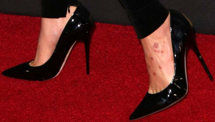Insect bites? Cara Delevingne showcases some mean-looking pockmarks on her left foot