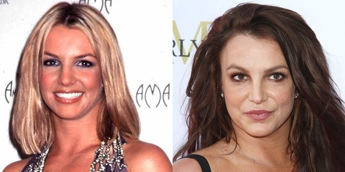 Britney Spears' face before and after rumored plastic surgery