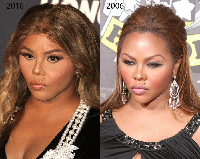 Lil' Kim's plastic surgery: before and after