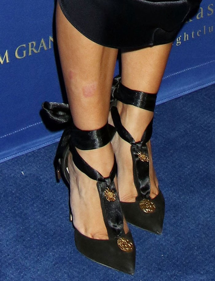 Kim Kardashian bares psoriasis marks on her leg