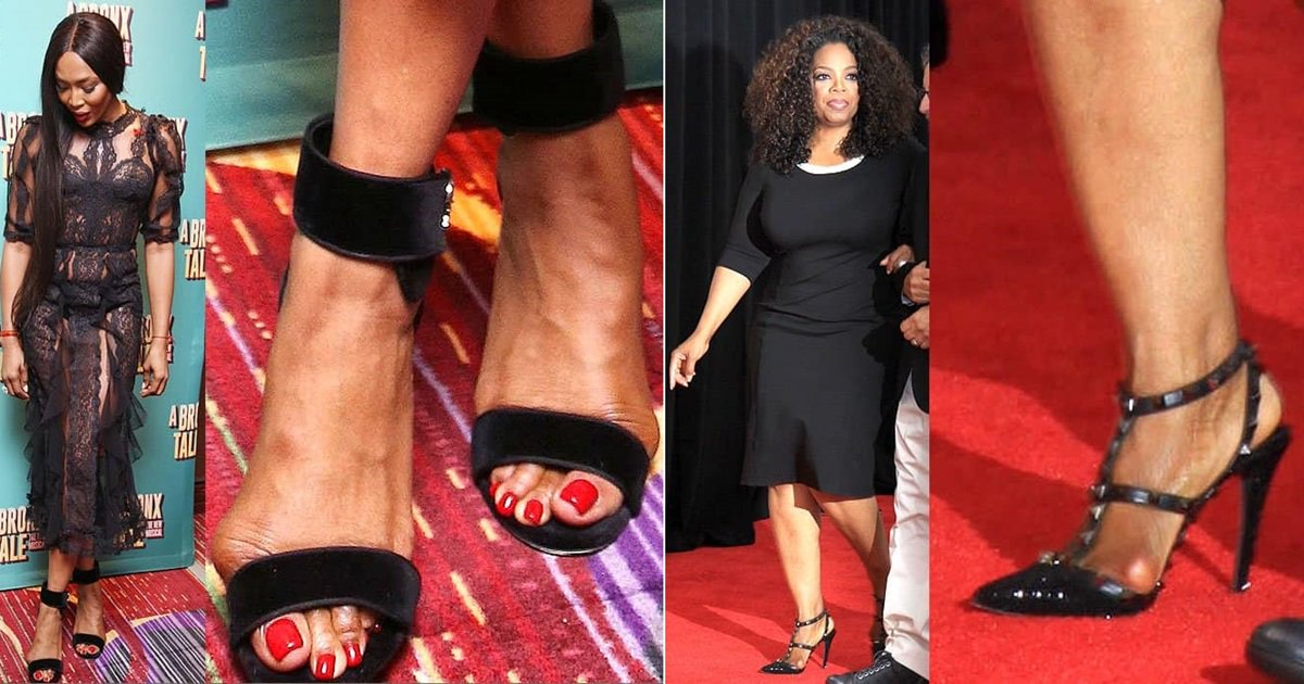 Celebrity Bunions How To Prevent And Treat Foot Deformities