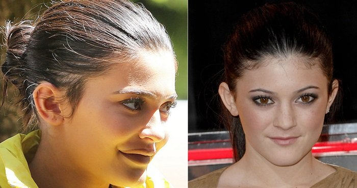 Kylie Jenner's lips before and after surgery