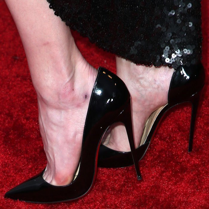 Amber Heard with blisters and open wounds on her feet in Christian Louboutin 'Iriza' pumps