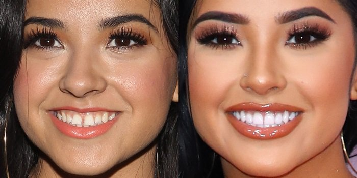 Becky G's trademark tooth gap and fixed teeth