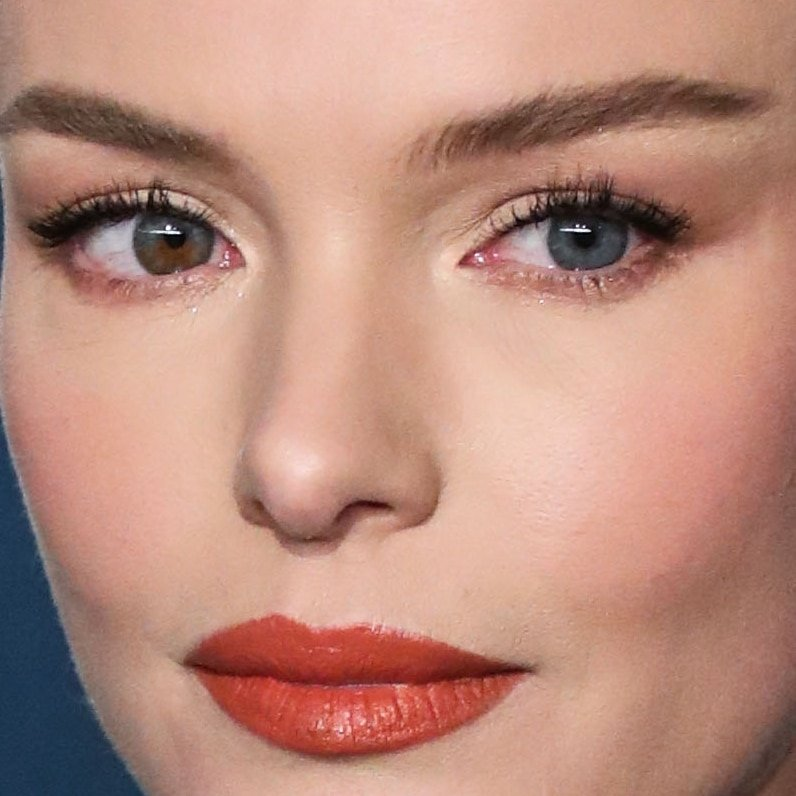 Kate Bosworth is perhaps the most famous celebrity with heterochromia
