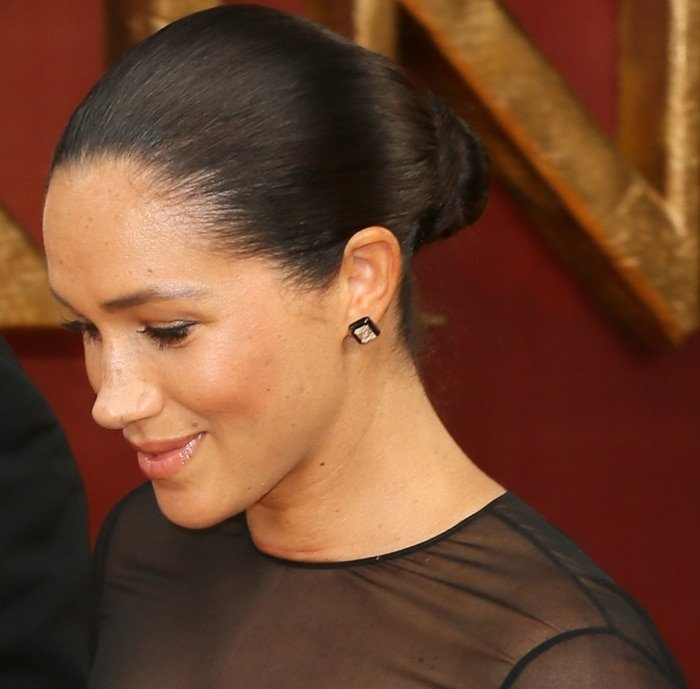Meghan Markle's painful-looking red marks on her neck