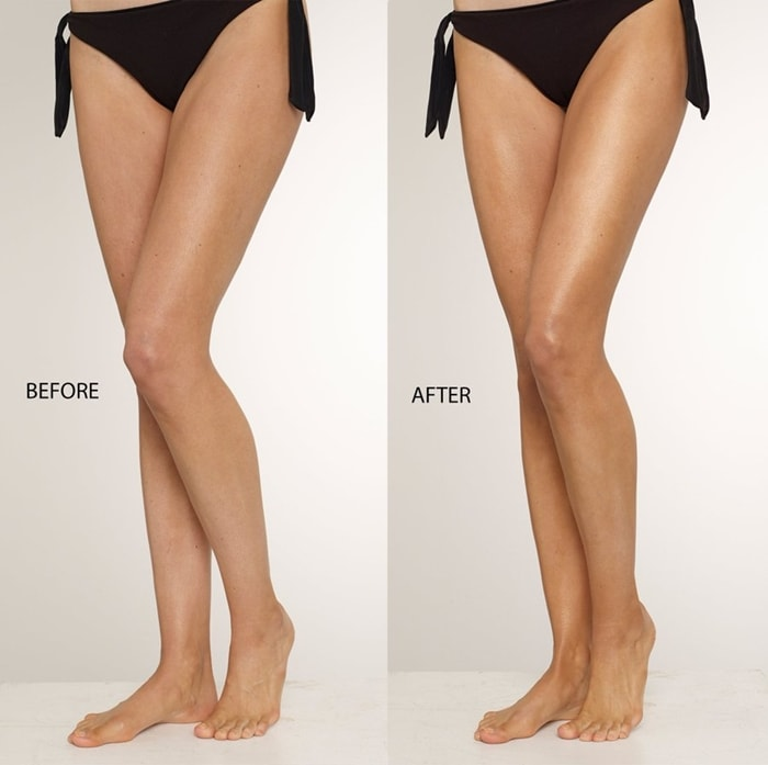 ThisWorks Perfect Legs Skin Miracle Before and After