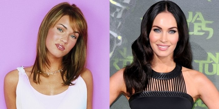 Before and after rumored plastic surgery