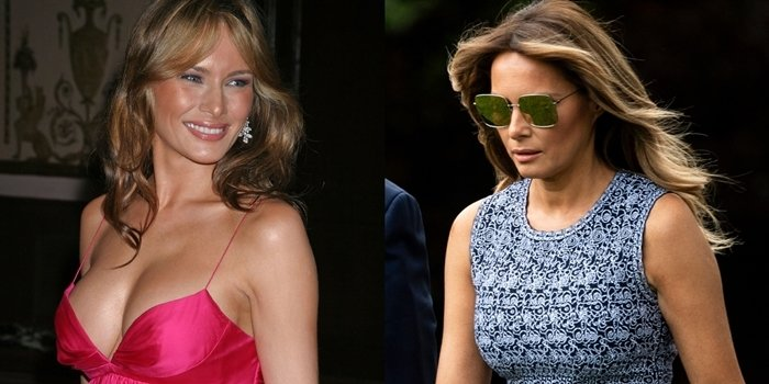 Melania Trump's breasts before and after rumored breast augmentation in 2005 (L) and in 2020 (R)