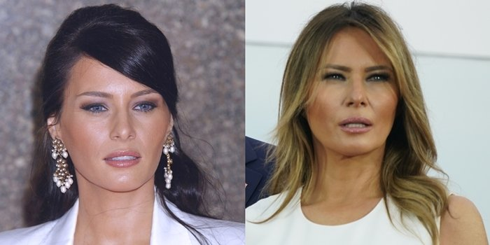 Face before and after rumored plastic surgery: Melania Trump in 2004 (L) and in 2020 (R)