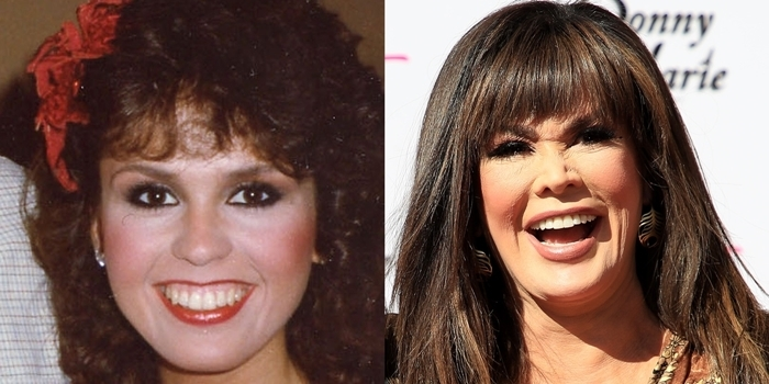 Face before and after rumored plastic surgery: Marie Osmond in 1982 (L) and in 2020 (R)