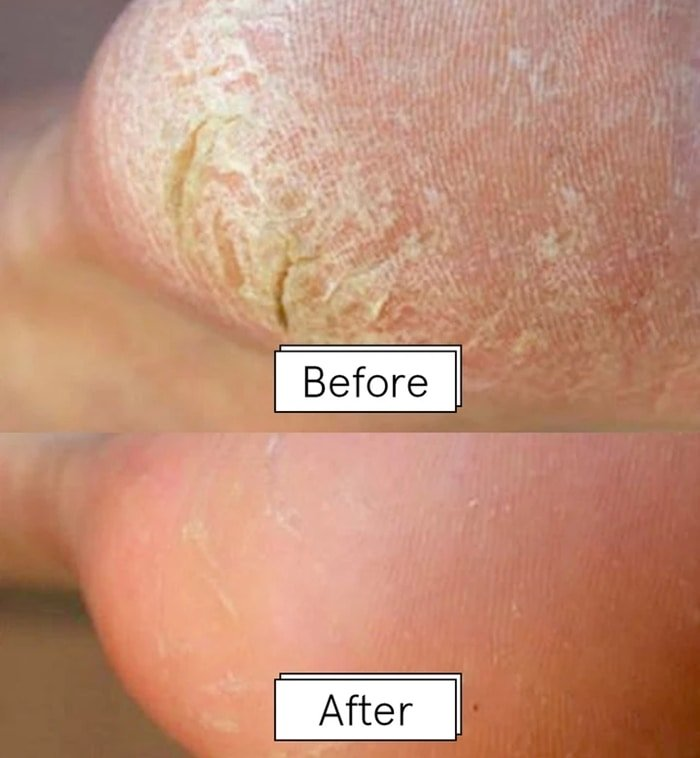 Feet before and after using Grace & Stella's Dr. Pedicure foot peeling mask