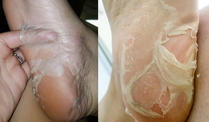 Fans of Baby Foot's foot peel masks show of their feet on Facebook