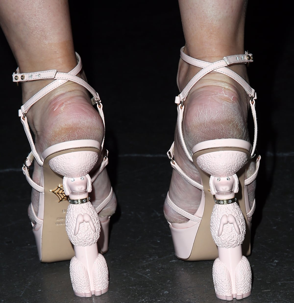Holly Madison's shockingly dry and cracked feet