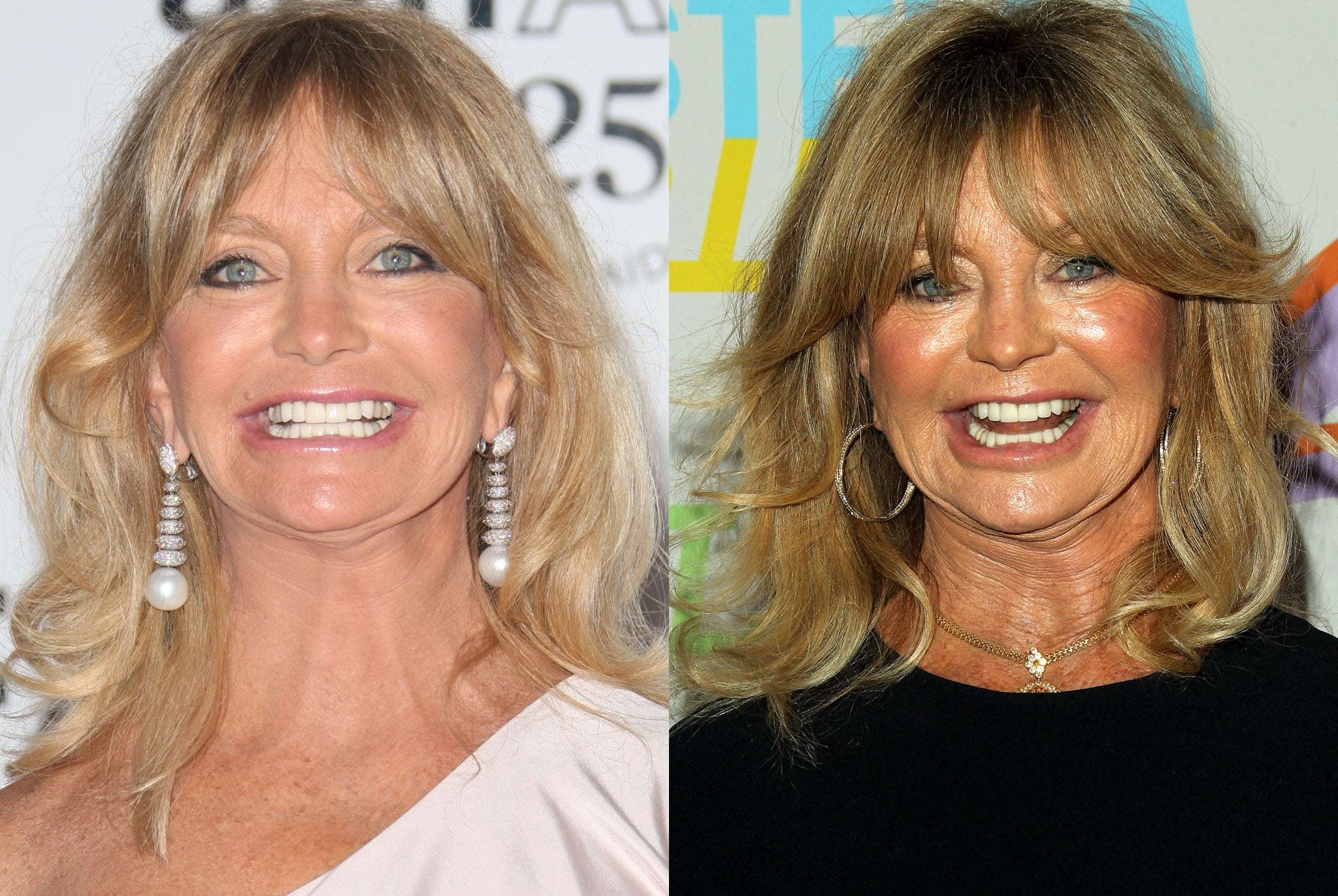 Goldie Hawn before (left) and after (right) plastic surgery rumors