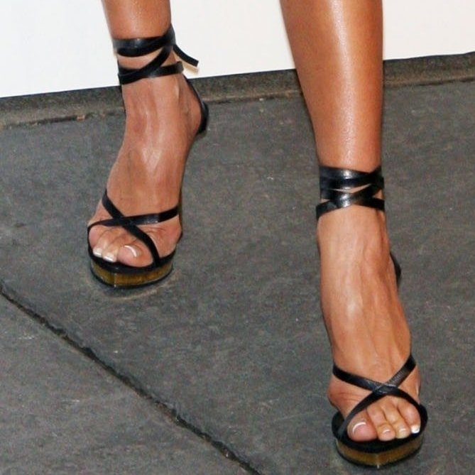 Victoria Beckham has endured foot bunions for a long time