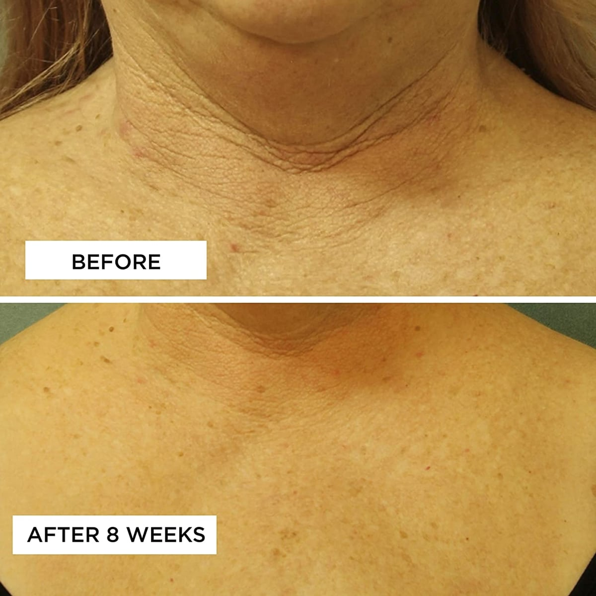 that visibly smooths, firms and evens the appearance of damaged skin along the neck and chest