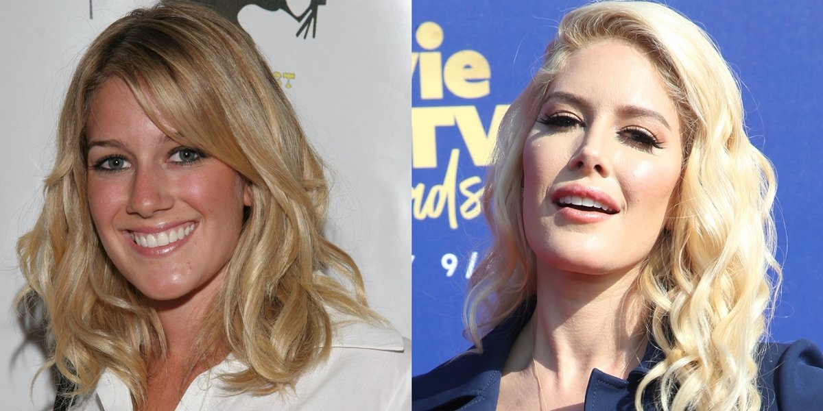 Before-and-after plastic surgery transformation: Heidi Montag in 2006 (L) and 2019