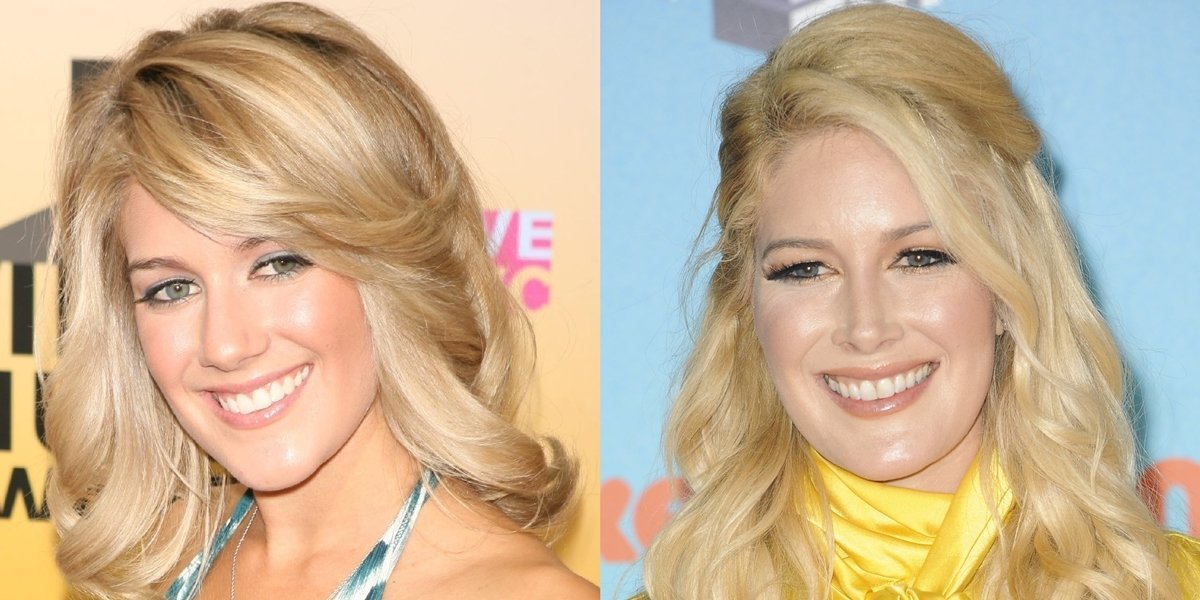 Pictured in 2006 and 2019, Heidi Montag regrets her plastic surgery operations